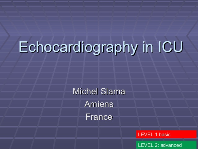 Echocardiography in ICU