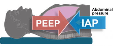How to set PEEP in Abdominal Hypertension